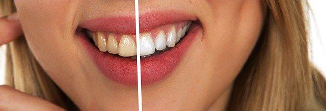 tanden bleken voor na